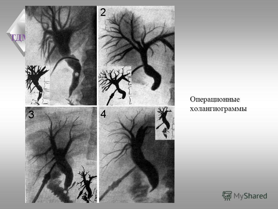 ТДМА Операционные холангиограммы
