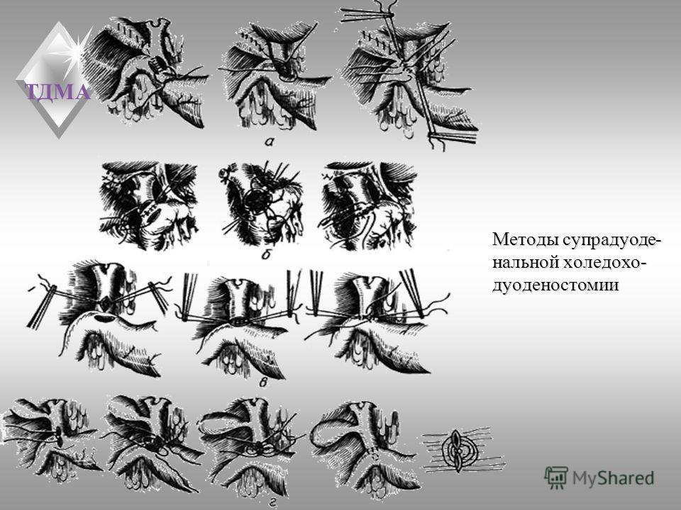 ТДМА Методы супрадуоде- нальной холедохо- дуоденостомии