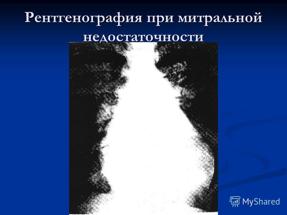 Рентгенография при митральной недостаточности