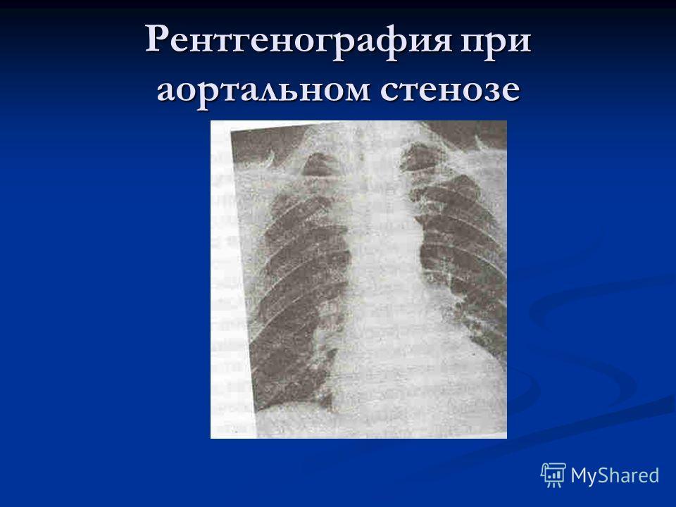 Рентгенография при аортальном стенозе