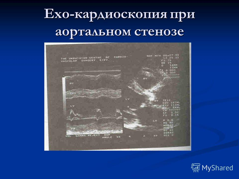 Ехо-кардиоскопия при аортальном стенозе