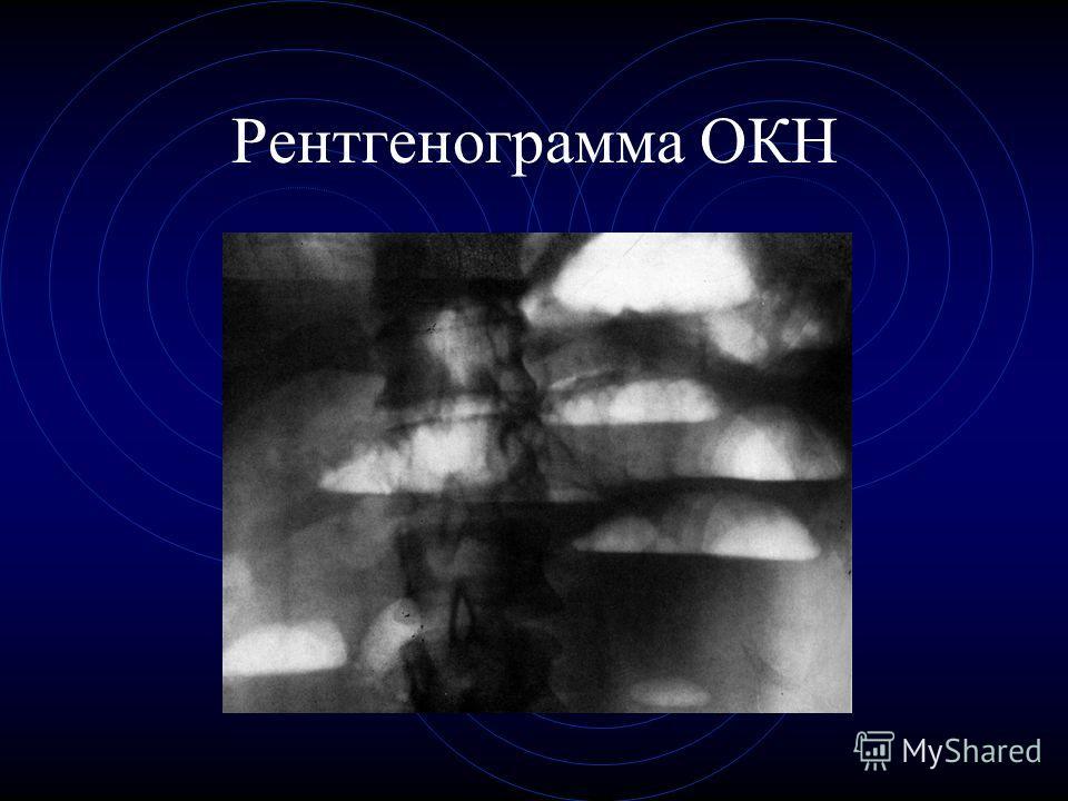 Рентгенограмма ОКН
