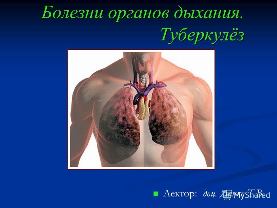 Болезни органов дыхания. Туберкулёз Лектор: доц. Дацко Т.В.