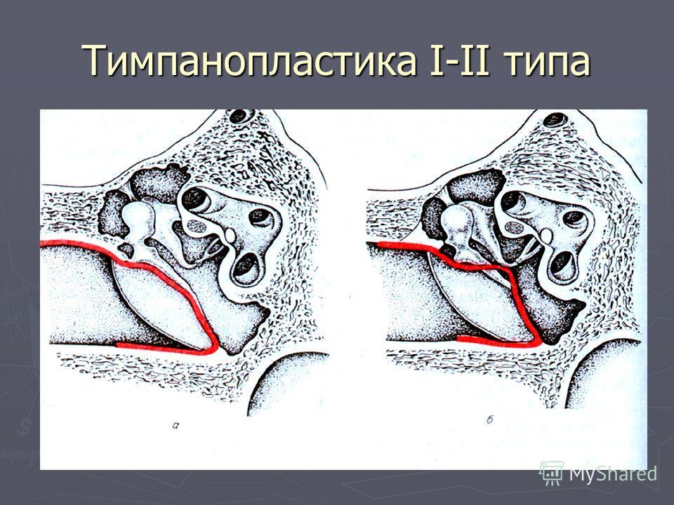 Тимпанопластика І-ІІ типа