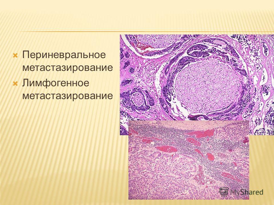 Периневральное метастазирование Лимфогенное метастазирование