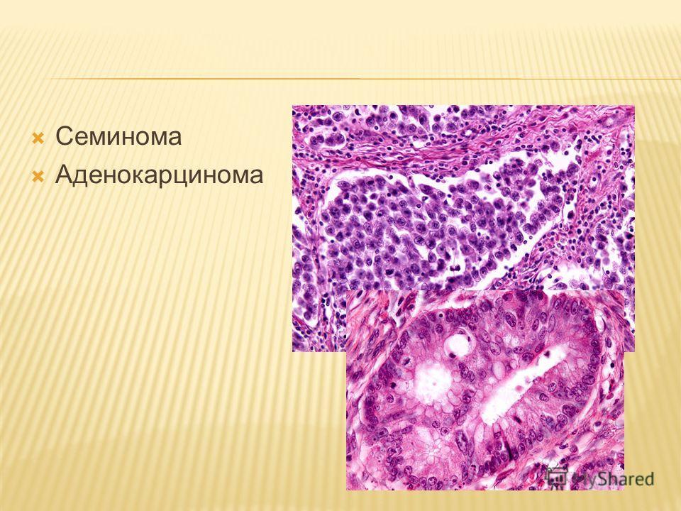 Семинома Аденокарцинома