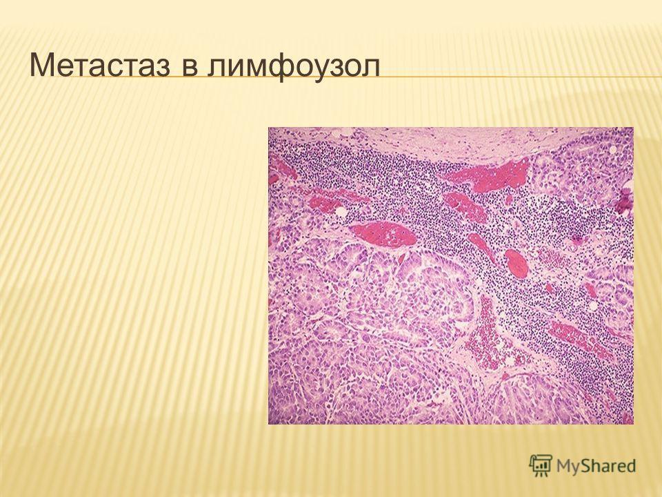 Метастаз в лимфоузол