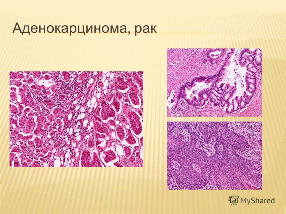 Аденокарцинома, рак
