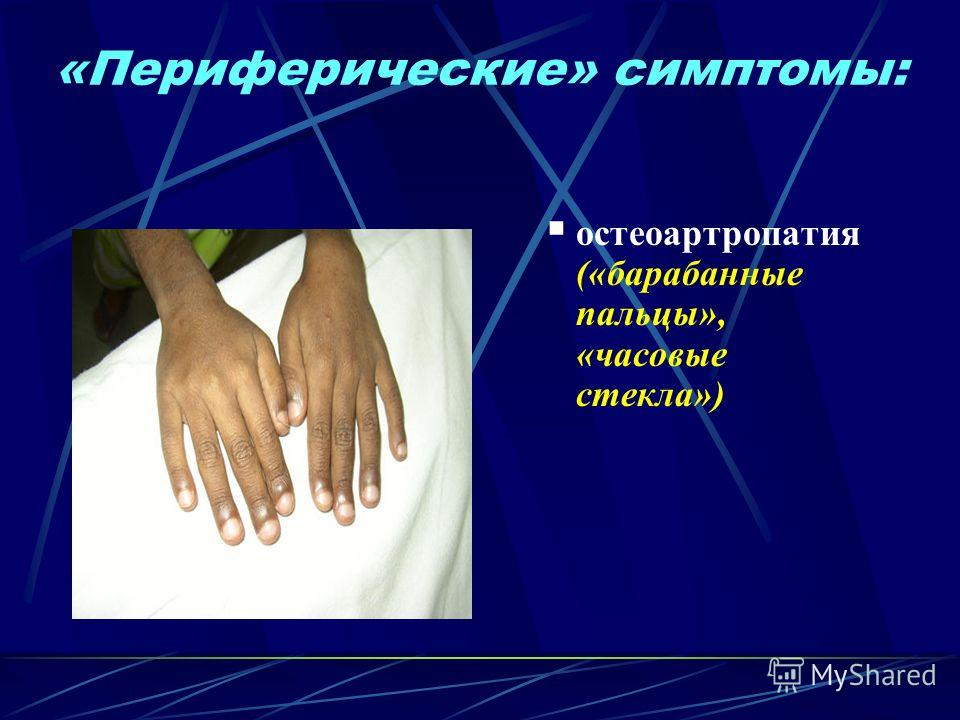 «Периферические» симптомы: остеоартропатия («барабанные пальцы», «часовые стекла»)