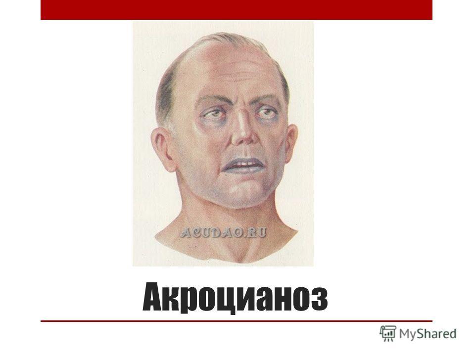 Акроцианоз
