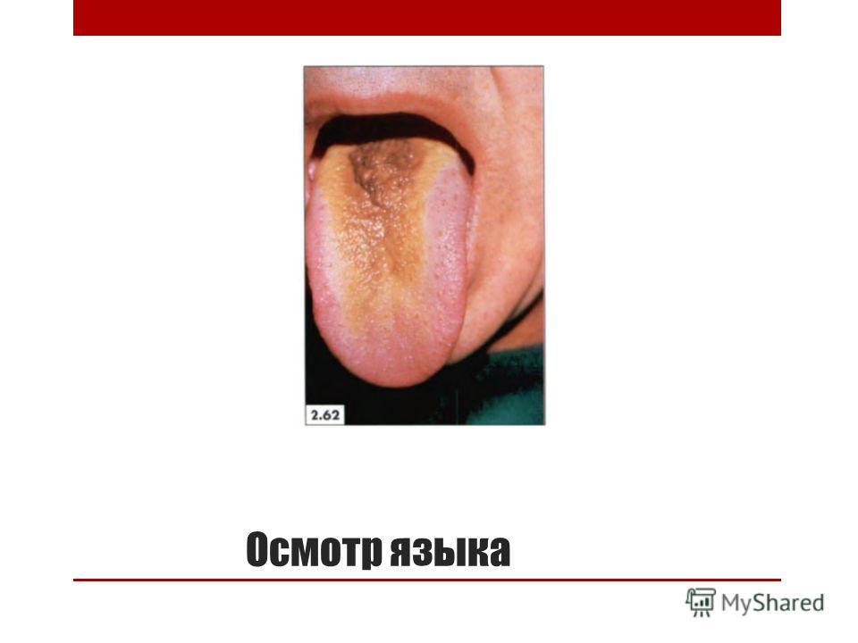 Осмотр языка