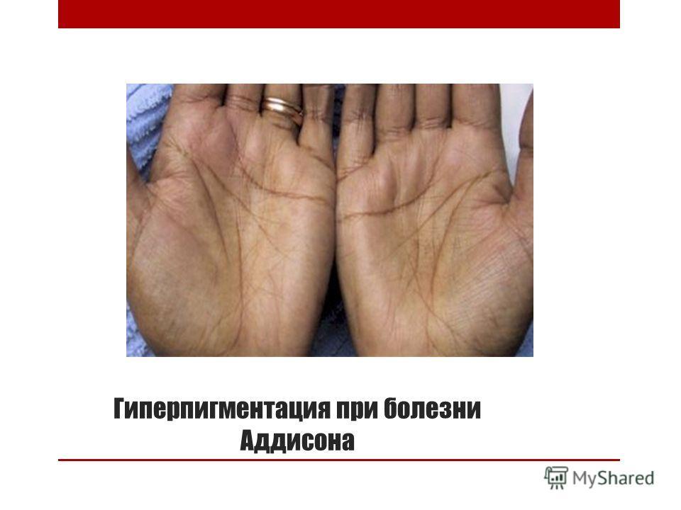 Гиперпигментация при болезни Аддисона