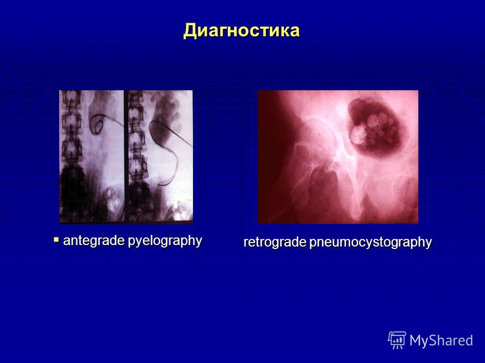 Диагностика antegrade pyelography antegrade pyelography retrograde pneumocystography