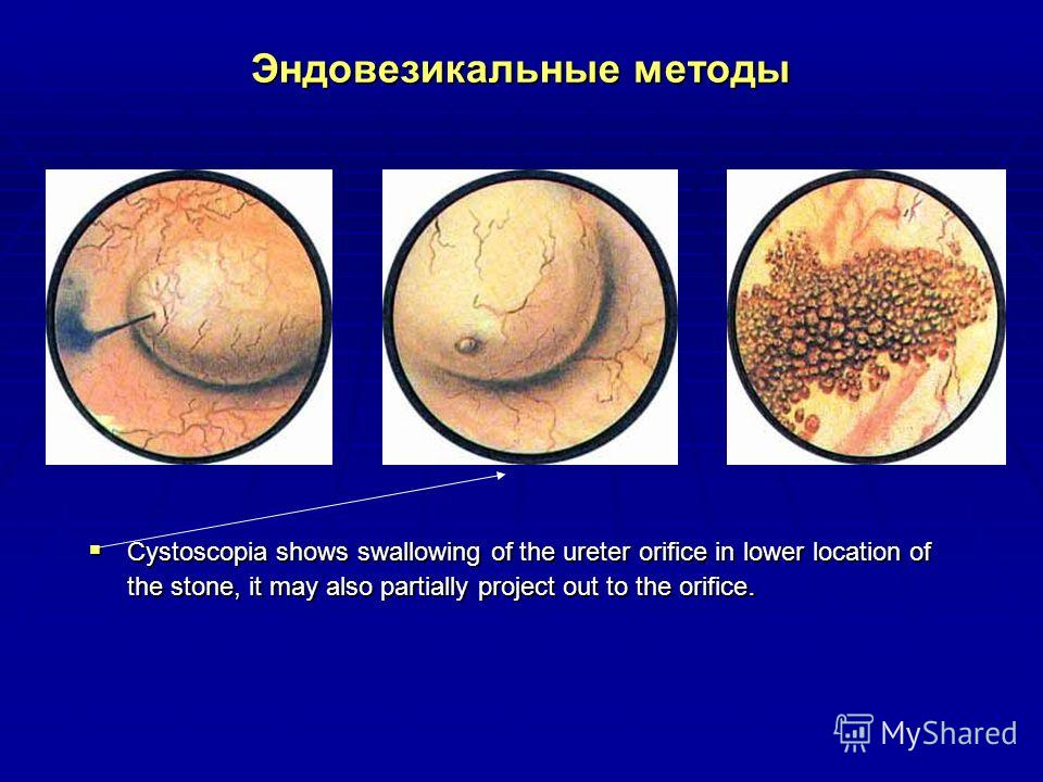 Эндовезикальные методы Cystoscopia shows swallowing of the ureter orifice in lower location of the stone, it may also partially project out to the orifice. Cystoscopia shows swallowing of the ureter orifice in lower location of the stone, it may also