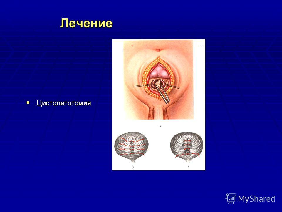 Лечение Цистолитотомия Цистолитотомия