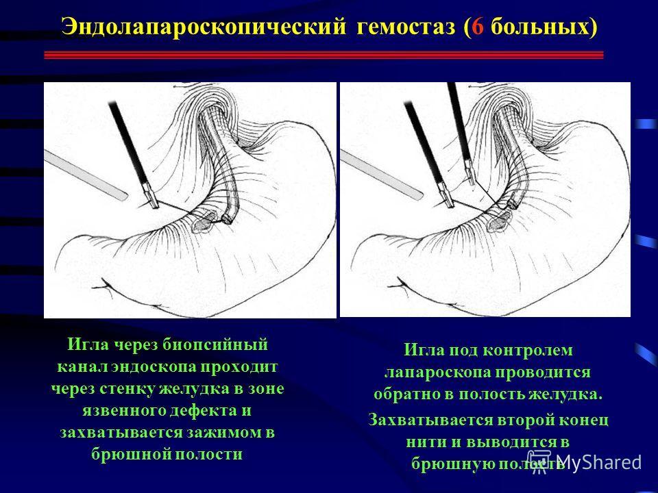 Эндолапароскопический гемостаз (6 больных) Игла через биопсийный канал эндоскопа проходит через стенку желудка в зоне язвенного дефекта и захватывается зажимом в брюшной полости Игла под контролем лапароскопа проводится обратно в полость желудка. Зах