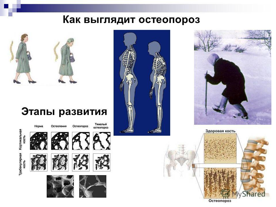 Как выглядит остеопороз Этапы развития