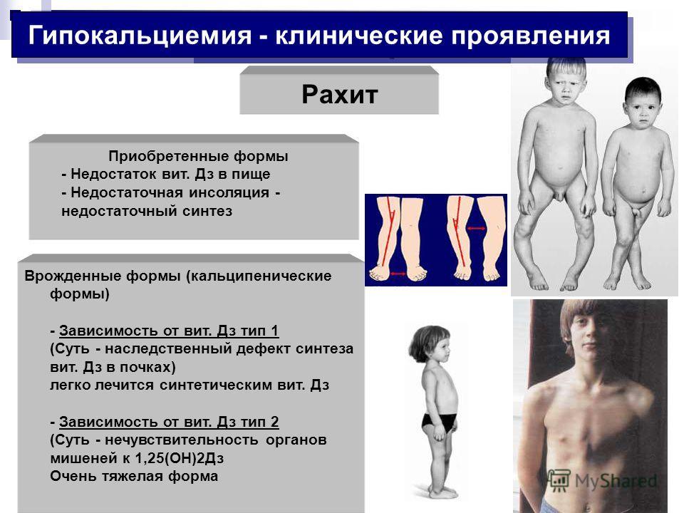 Рахит Гіпокальциемія Приобретенные формы - Недостаток вит. Дз в пище - Недостаточная инсоляция - недостаточный синтез Врожденные формы (кальципенические формы) - Зависимость от вит. Дз тип 1 (Суть - наследственный дефект синтеза вит. Дз в почках) лег