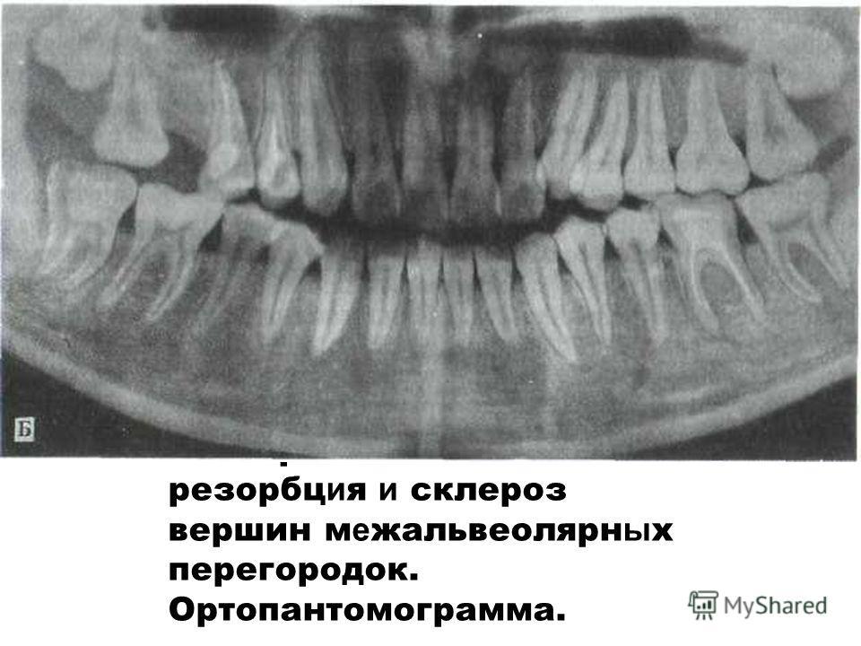 Б - горизонтальна я резорбц и я и склероз вершин м е жальвеолярн ы х перегородок. Ортопантомограмма.
