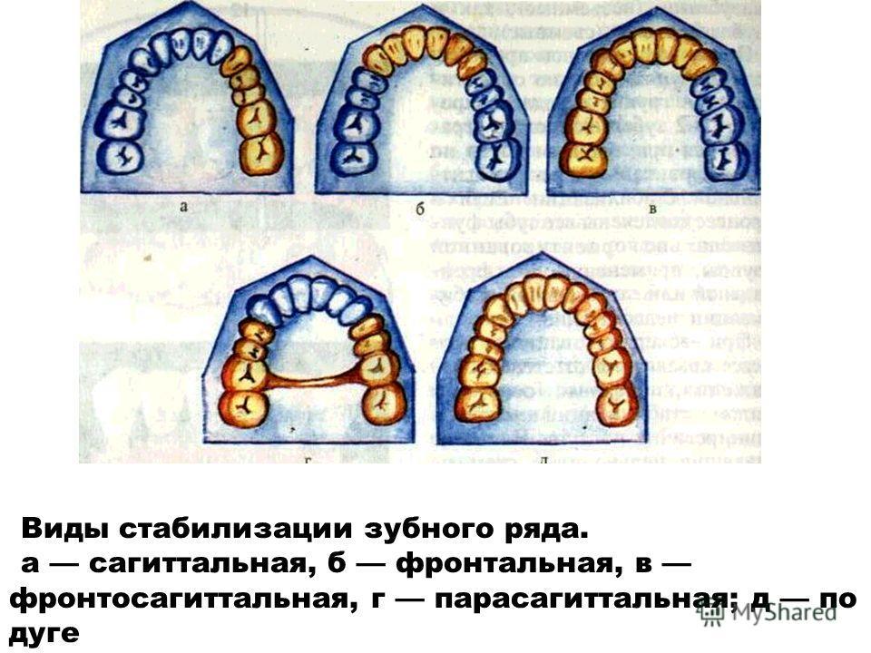 Виды стабилизации зубного ряда. а сагиттальная, б фронтальная, в фронтосагиттальная, г парасагиттальная; д по дуге