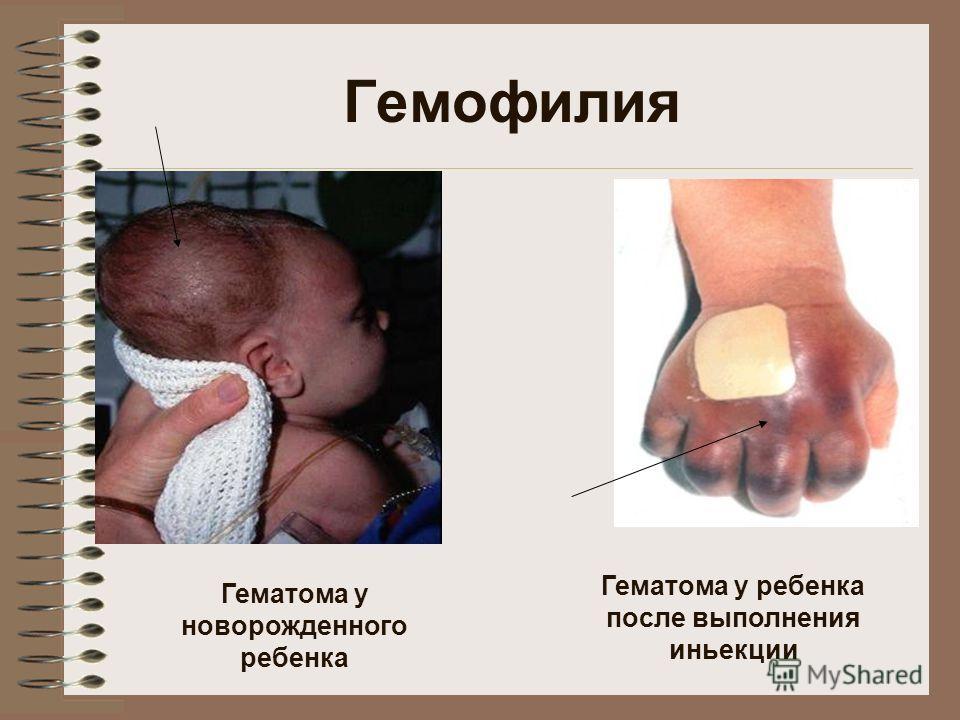 Гематома у новорожденного ребенка Гематома у ребенка после выполнения иньекции