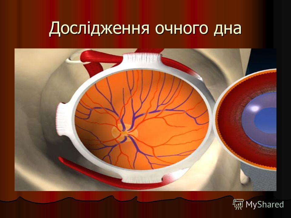 Дослідження очного дна