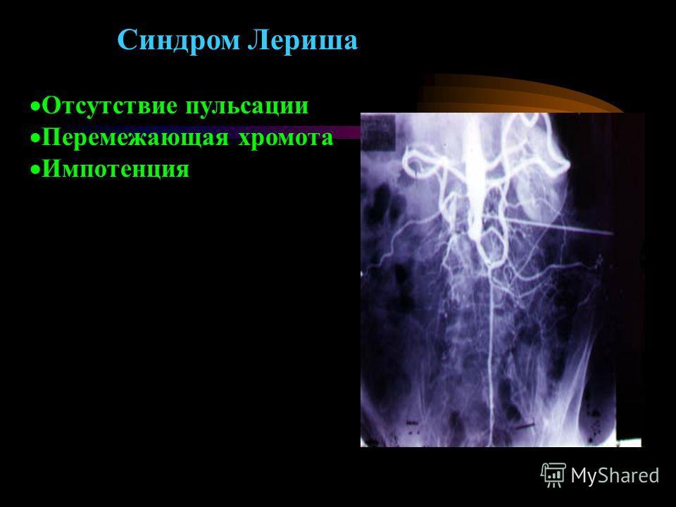 Синдром Лериша Отсутствие пульсации Перемежающая хромота Импотенция