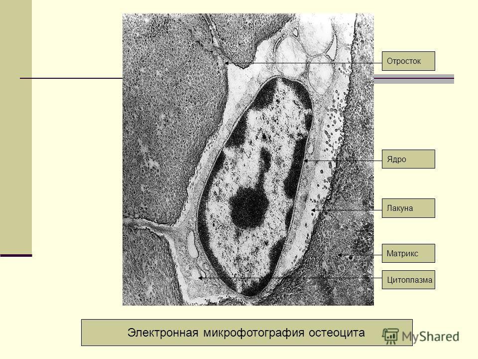 Лакуна Электронная микрофотография остеоцита Ядро Отросток Цитоплазма Матрикс