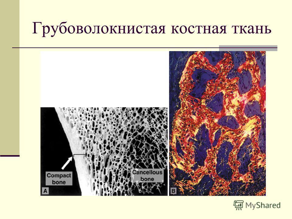 Грубоволокнистая костная ткань