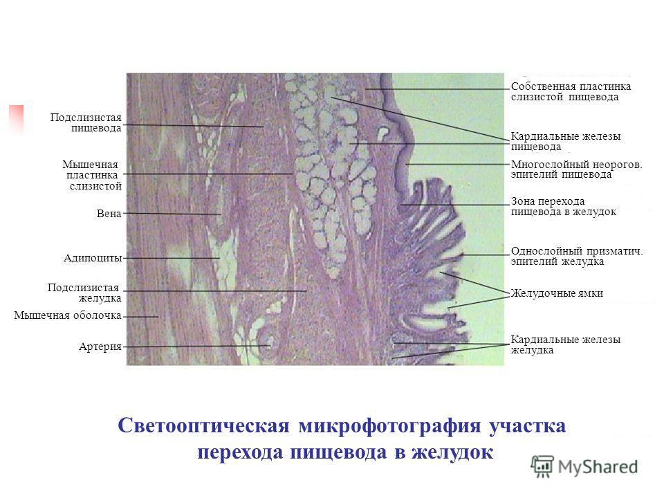 Светооптическая микрофотография участка перехода пищевода в желудок Артерия Мышечная пластинка слизистой Подслизистая пищевода Вена Адипоциты Подслизистая желудка Мышечная оболочка Кардиальные железы пищевода Собственная пластинка слизистой пищевода