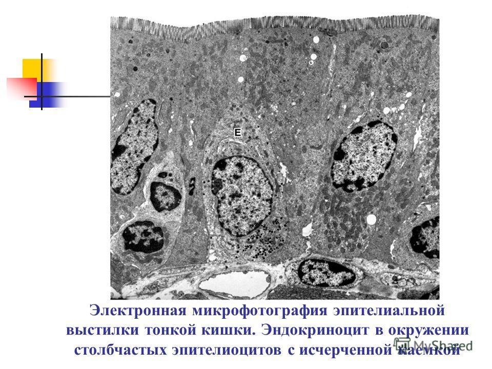 Электронная микрофотография эпителиальной выстилки тонкой кишки. Эндокриноцит в окружении столбчастых эпителиоцитов с исчерченной каемкой
