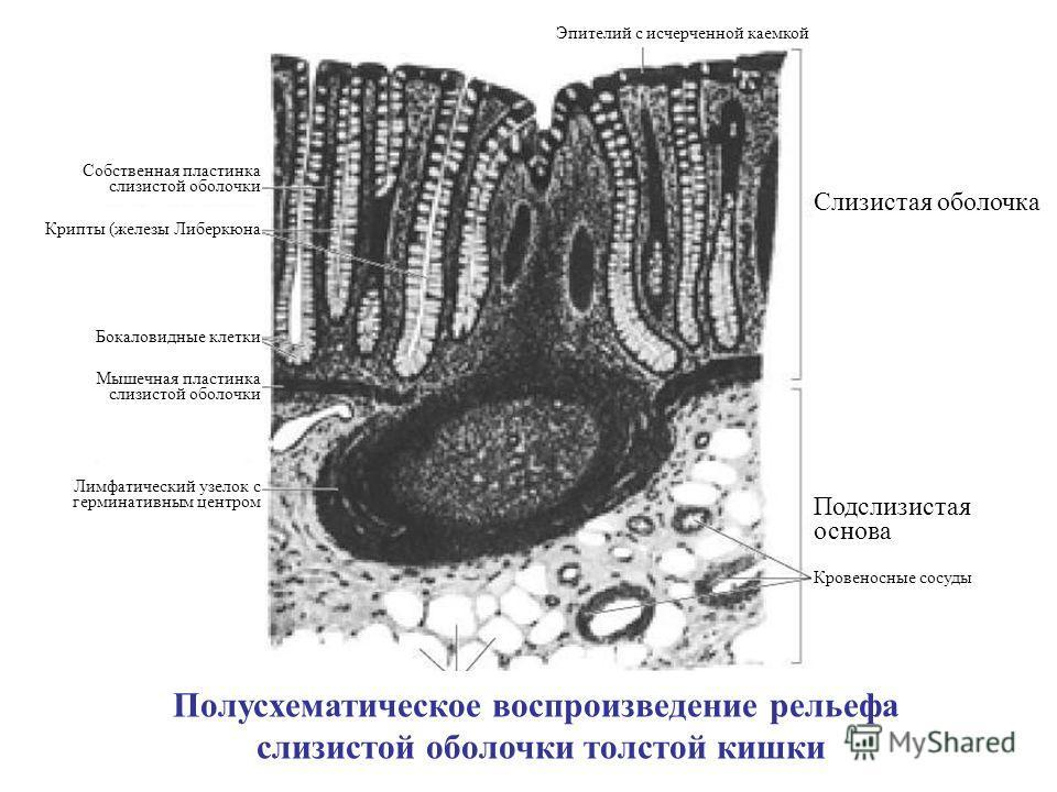 Полусхематическое воспроизведение рельефа слизистой оболочки толстой кишки Лимфатический узелок с герминативным центром Мышечная пластинка слизистой оболочки Бокаловидные клетки Собственная пластинка слизистой оболочки Крипты (железы Либеркюна Слизис