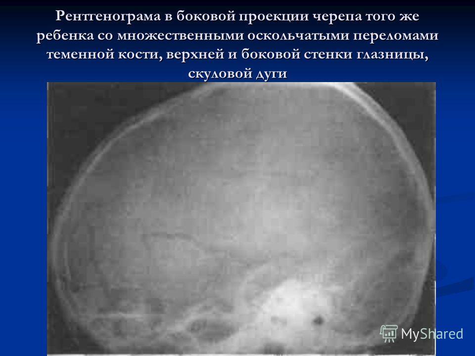 Рентгенограма в боковой проекции черепа того же ребенка со множественными оскольчатыми переломами теменной кости, верхней и боковой стенки глазницы, скуловой дуги