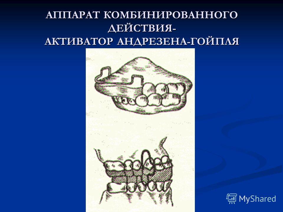 АППАРАТ КОМБИНИРОВАННОГО ДЕЙСТВИЯ- АКТИВАТОР АНДРЕЗЕНА-ГОЙПЛЯ