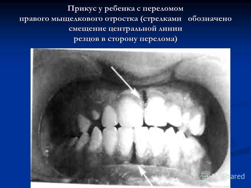 Прикус у ребенка с переломом правого мыщелкового отростка (стрелками обозначено смещение центральной линии резцов в сторону перелома)