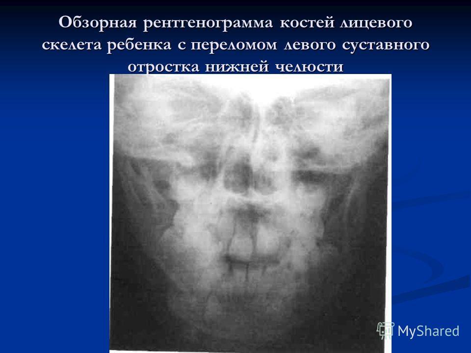Обзорная рентгенограмма костей лицевого скелета ребенка с переломом левого суставного отростка нижней челюсти