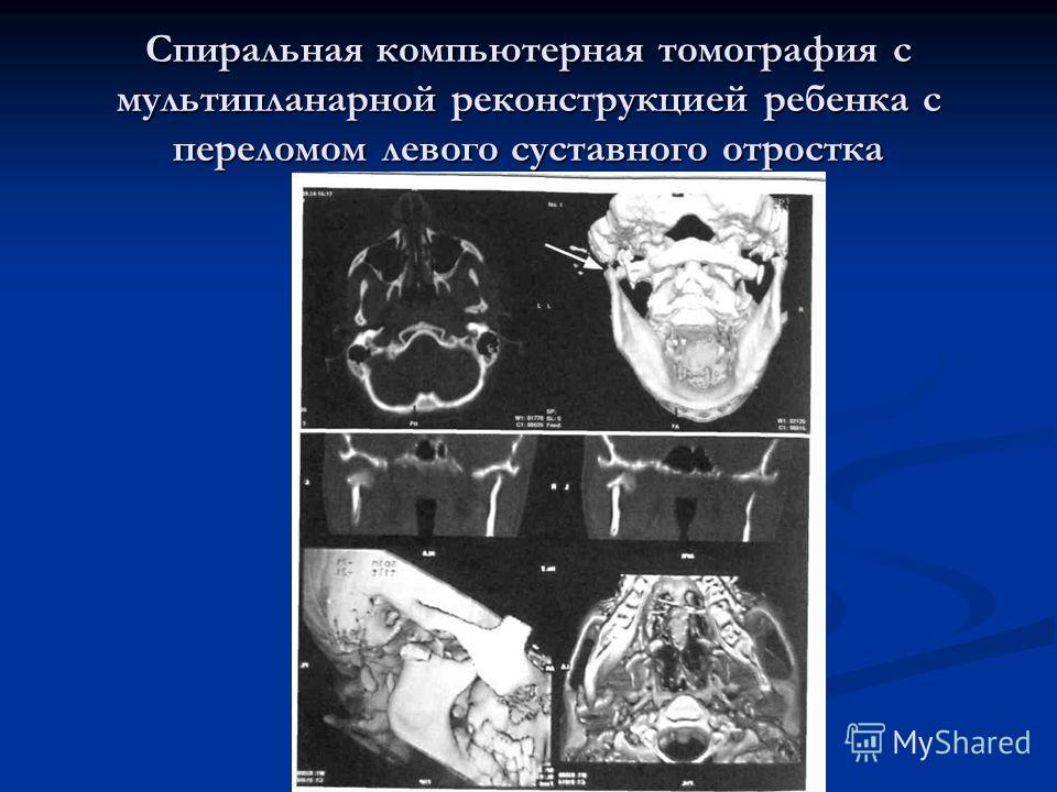 Спиральная компьютерная томография с мультипланарной реконструкцией ребенка с переломом левого суставного отростка