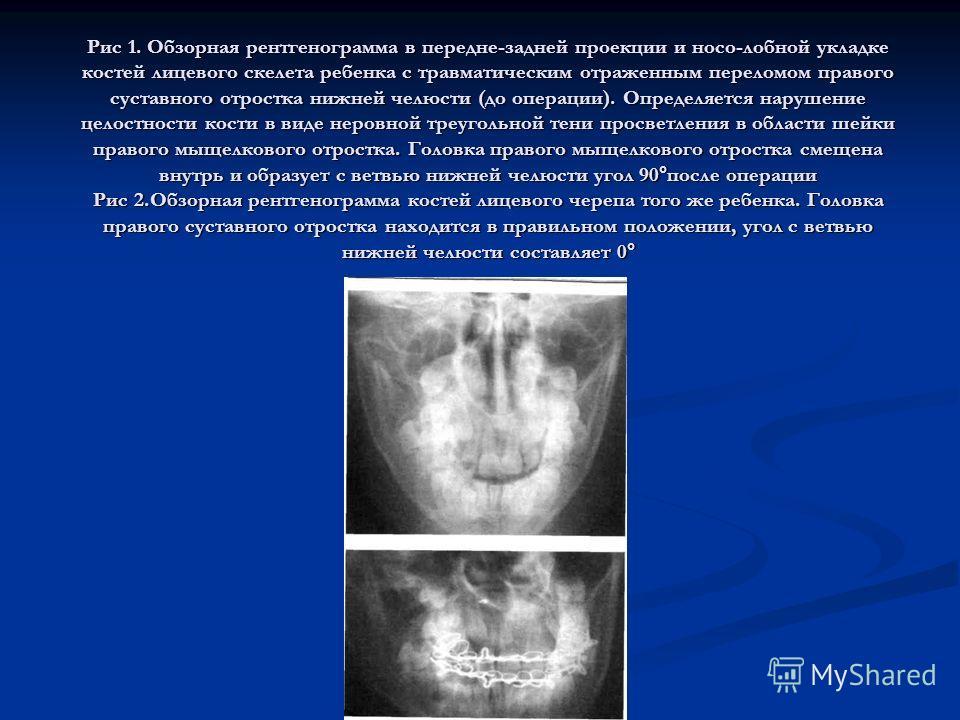 Рис 1. Обзорная рентгенограмма в передне-задней проекции и носо-лобной укладке костей лицевого скелета ребенка с травматическим отраженным переломом правого суставного отростка нижней челюсти (до операции). Определяется нарушение целостности кости