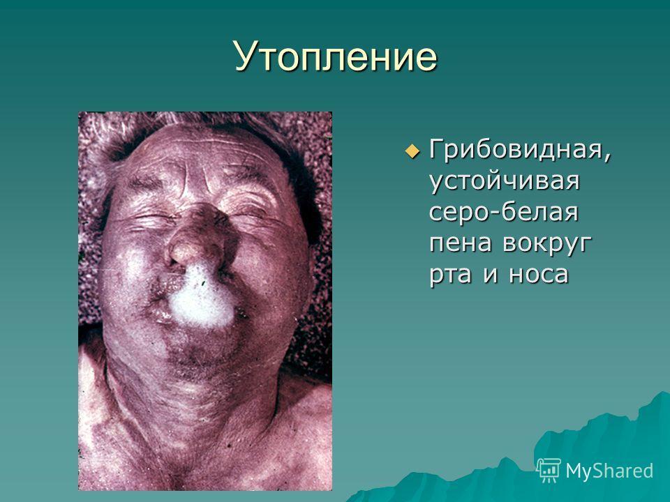 Утопление Грибовидная, устойчивая серо-белая пена вокруг рта и носа Грибовидная, устойчивая серо-белая пена вокруг рта и носа