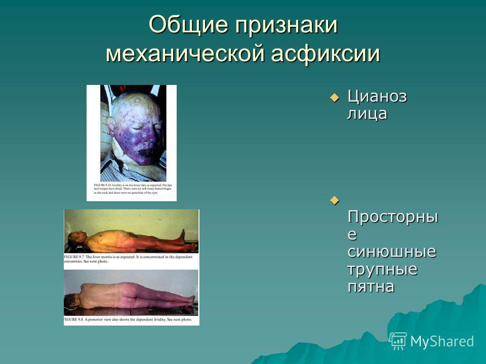 Общие признаки механической асфиксии Цианоз лица Цианоз лица Просторны е синюшные трупные пятна Просторны е синюшные трупные пятна