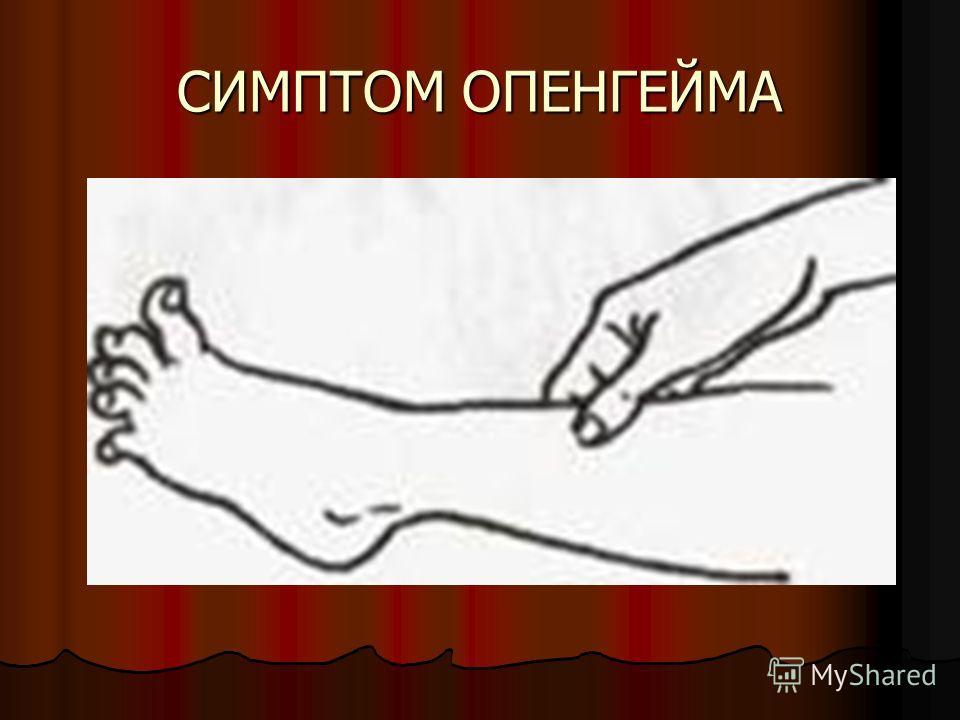 СИМПТОМ ОПЕНГЕЙМА