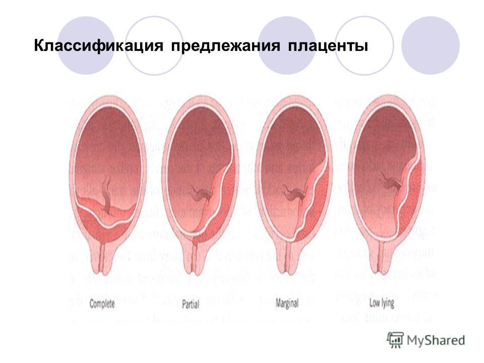 Классификация предлежания плаценты