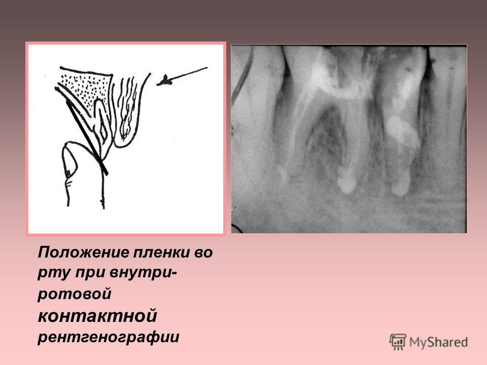 1. ВНУТРИРОТОВАЯ КОНТАКТНАЯ РЕНТГЕНОГРАФИЯ применяется: - для получения четкого изображения периапикальных тканей - для получения изображения зубов, идентичного их истинным размерам - для определения пространственных взаимоотношений объектов, локализ