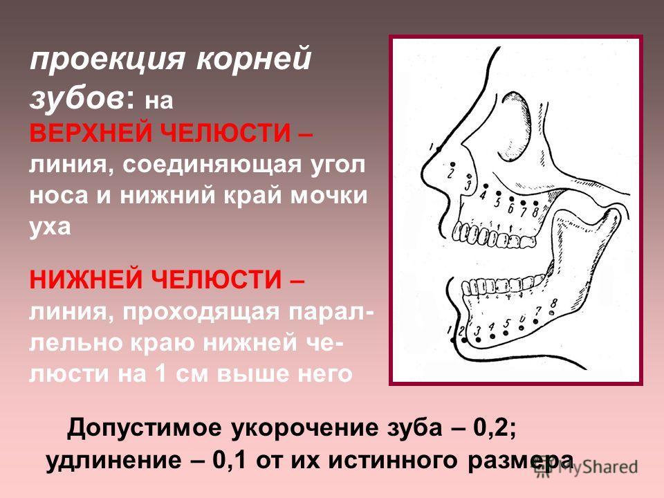 Правило изометрии (Цъешинского)- центральный луч направляется на верхушку корня зуба перпендикулярно биссектрисе угла, образованного осью зуба и плоскостью пленки