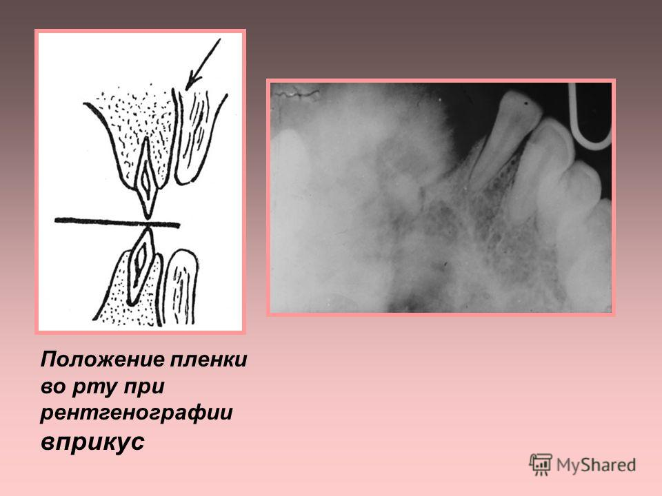 3. Рентгенография вприкус (окклюзионная) применяется: - при большой распространенности процесса (4 и более зубов) - при поиске ретинированных и дистопирован- ных зубов у детей - для изучения состояния твердого неба и дна ротовой полости - для оценки