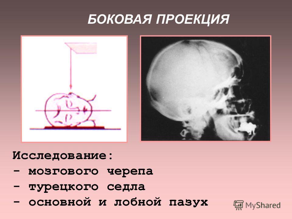 ПРЯМАЯ ПРОЕКЦИЯ. НОСОПОДБОРОДНАЯ УКЛАДКА применяется для исследования: - костей среднего и верхнего этажей лицевого черепа - придаточных пазух носа