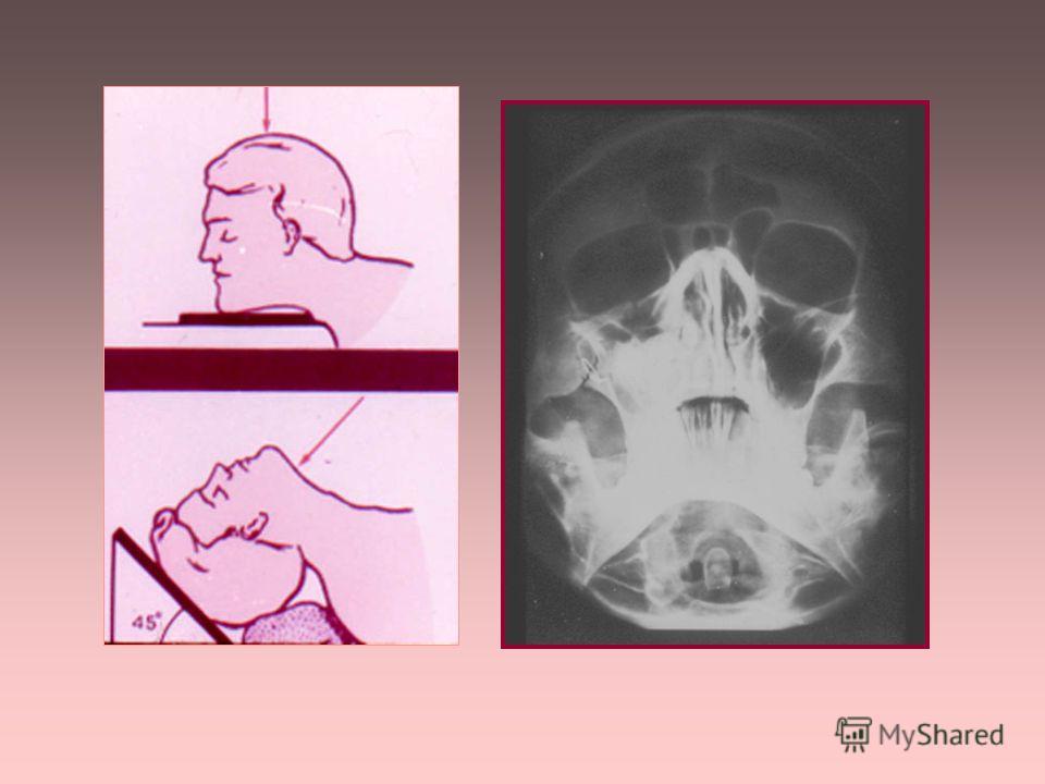 АКСИАЛЬНАЯ (ПОЛУАКСИАЛЬНАЯ) ПРОЕКЦИЯ применяется для исследования: - основания черепа - пирамид височных костей - скуловых костей - гайморовых пазух