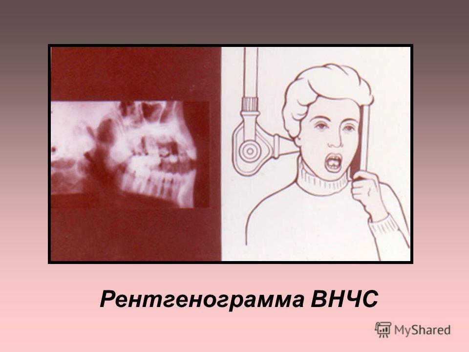 ОСНОВНЫЕ МЕТОДИКИ для изучения ВНЧС : - боковая рентгенография нижней челюсти - рентгенография по Шюллеру