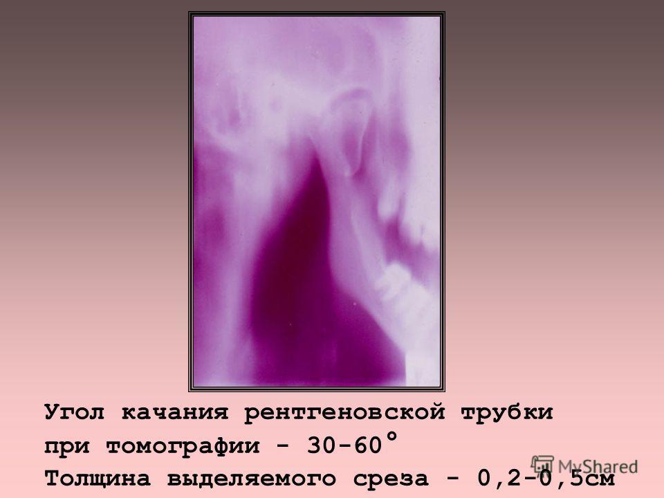 ЛИНЕЙНАЯ ТОМО - и ЗОНОГРАФИЯ - позволяет устранить суммационный характер изображения ПРИНЦИП МЕТОДА: Р-трубка и кассета перемещаются относительно объекта в разных плоскостях, в противопо- ложных направлениях синхронно. Четким получается изображение с