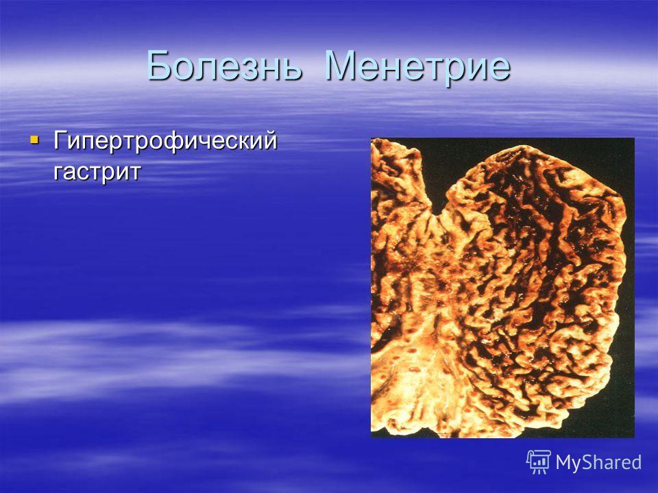 Болезнь Менетрие Гипертрофический гастрит Гипертрофический гастрит